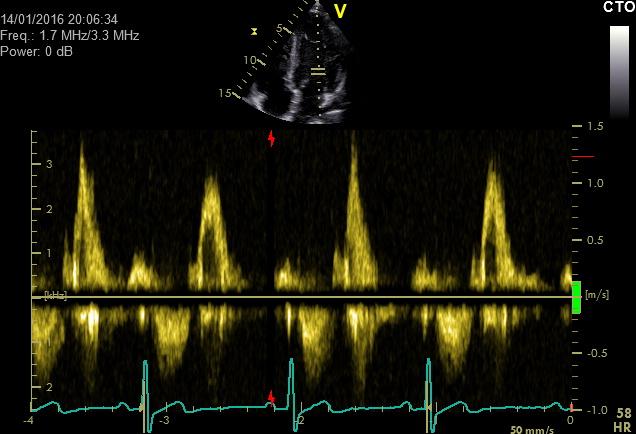 Dopplersonographie des Herzens-mit Darstellung von Flusskurven