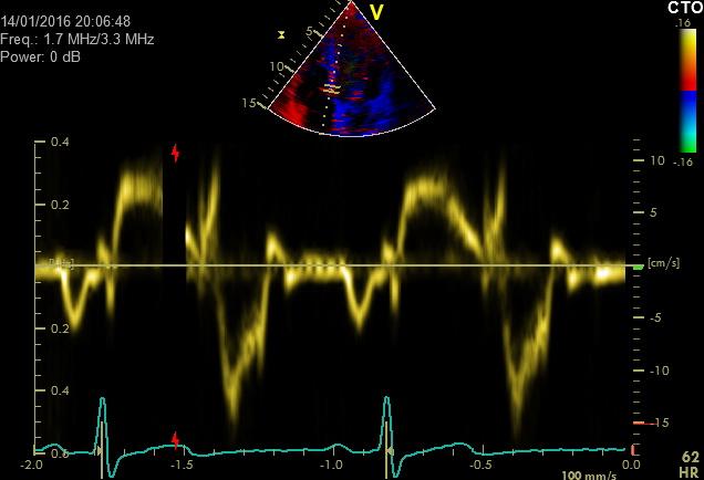 Erweiterte echokardiographische Verfahren-Gewebedoppler (TVI) zur Erfassung der Funktion des Herzmuskels